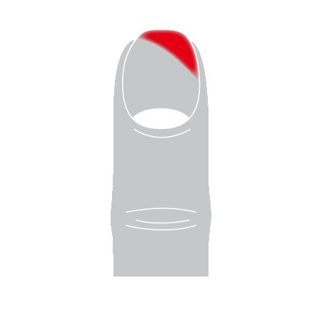 baskenote